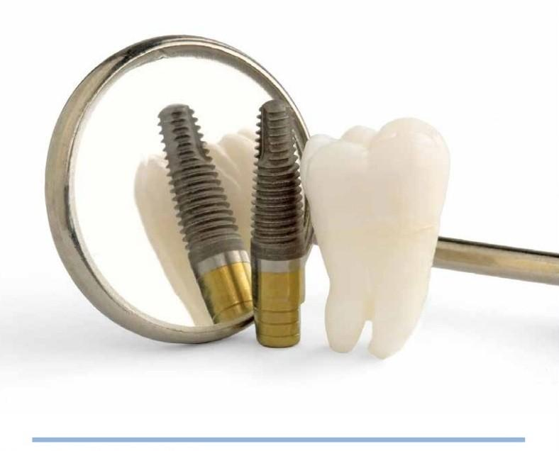 implant dentar tipuri