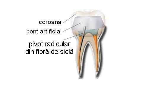 Pivot - Reconstituirea corono-radiculară