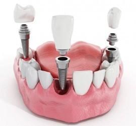 implant dentar,implant dentar pret